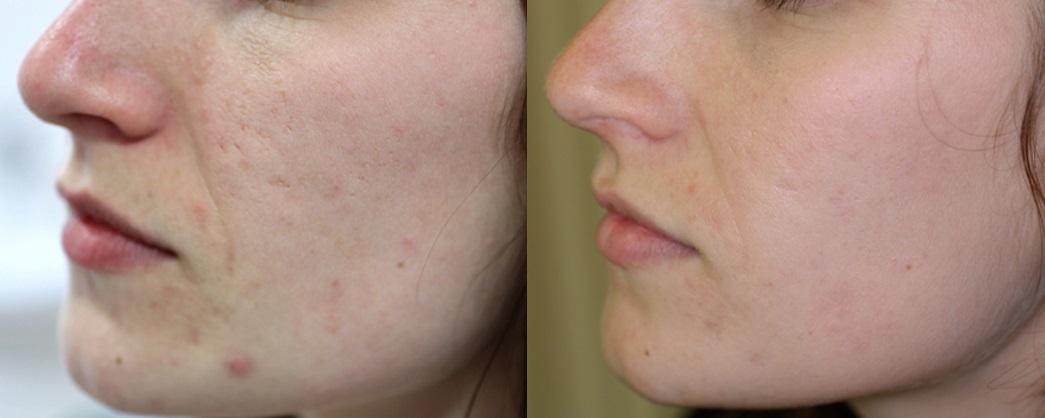 laseren acne