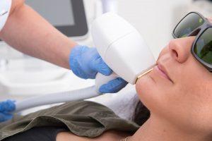 Laserbehandeling Vlaardingen