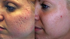 gaatjes in gezicht door acne
